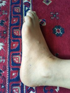 太陽膀胱経の取穴練習